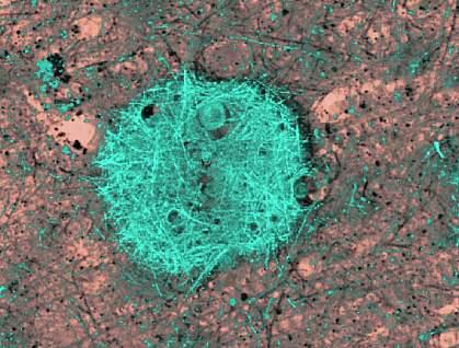 Image of a blue-green fibrous mass