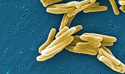 Electron micrograph of several rod-shaped bacteria