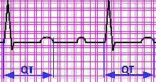 Illustration of an EKG graph showing the QT interval.