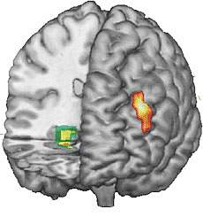 Image of Functional MRI data superimposed on 3-D MRI reconstruction of the brain