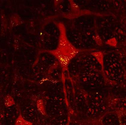 Image of yellow dots in red brain cell