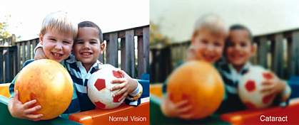 A very blurry photo of two boys, illustrating vision with a cataract