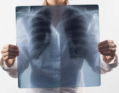 Photo of a lung x-ray held in front of a woman's chest