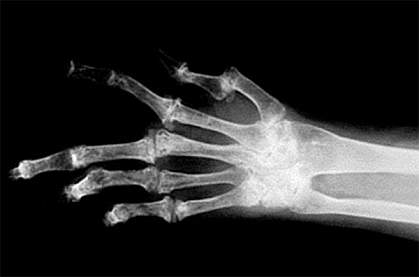x-ray image of a human hand with several bent fingers