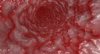 Image of the interior of an artery