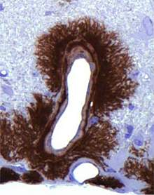 Microscopic image of dark staining surrounding an open space