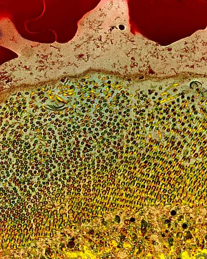 Microscopic image of a mosquito gut after a blood meal