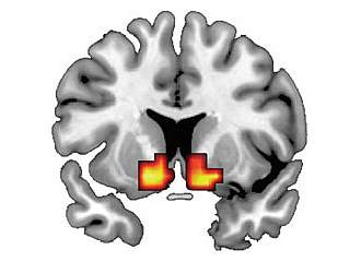 Brain image with 2 small red and yellow patches.