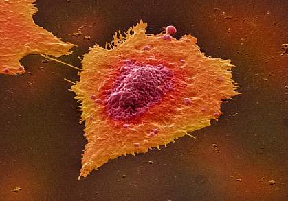 Image of a human colon cancer cell