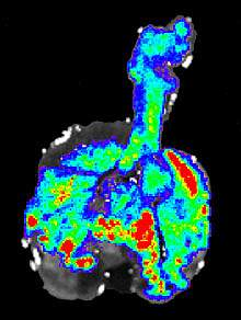 Image of mouse lung with brightly colored areas