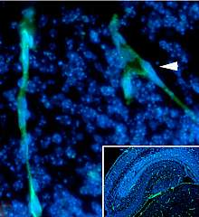 Microscopic image of hippocampus