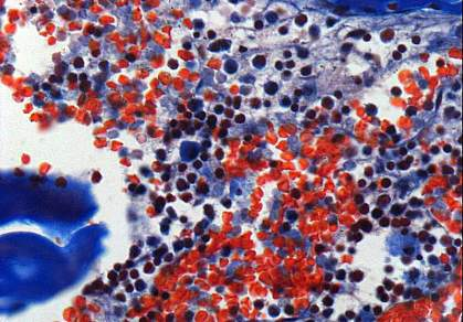 Microscopic image of blood cells in bone marrow