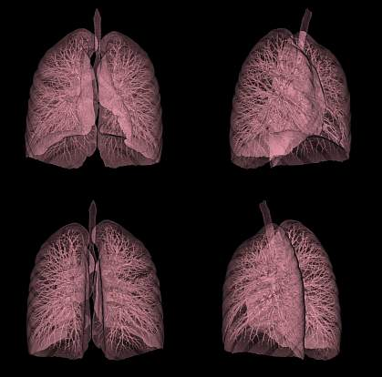 CT scan of a human lung