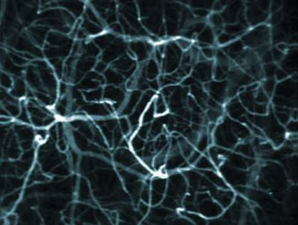 Microscope image of a blood vessel network