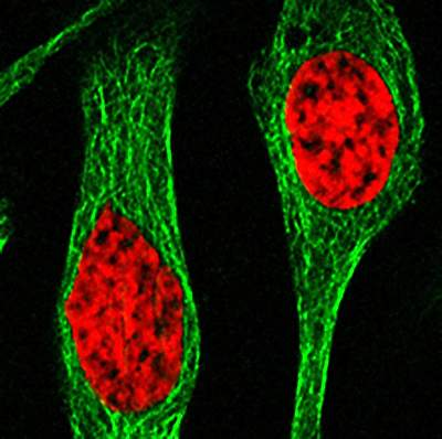 Microscope image of red circular areas in 2 cells