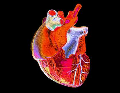 Digitally enhanced photograph of a human heart