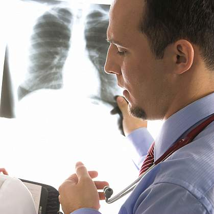 Photo of doctors looking at an x-ray cropped