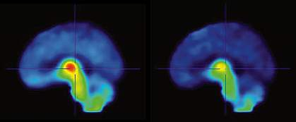 PET scan images of 2 human brains, with the top brain showing a patch of red at center