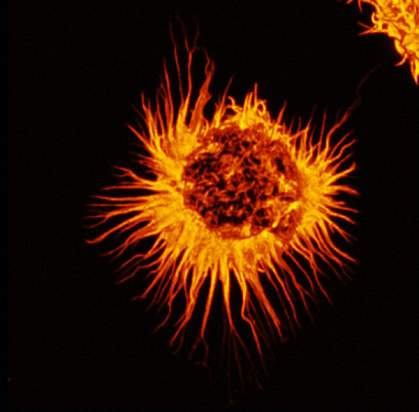 Micrograph of a round cell with many long and slender protrusions