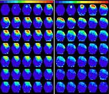 Photo of numerous images of mouse brains, with more on the left showing yellow and red areas.