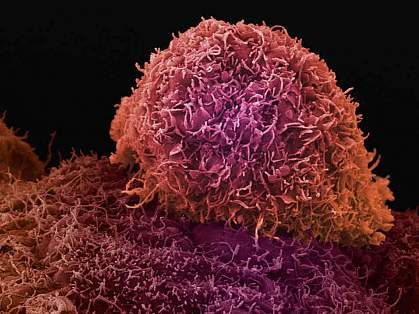 Scanning electron micrograph of a prostate cancer cell
