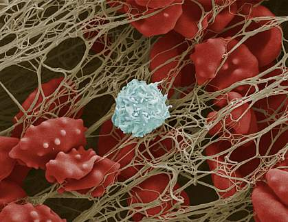 Scanning electron micrograph of blood cells trapped in a fibrous mesh