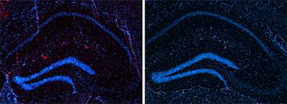 Two similar microscope images, with more red spots in the left one.