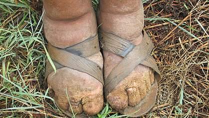 Abnormally swollen feet