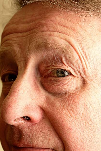 Photo of a senior man focused on the eye.