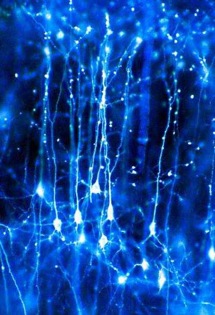 Network of branched neurons.