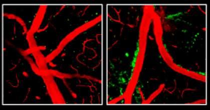 Blood vessels in the blood-brain barrier.