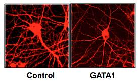 Microscope images of cultured rat neurons.