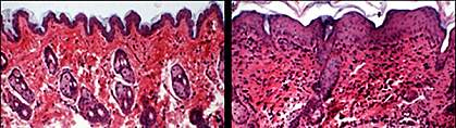 Two microscopic images of mouse skin, one normal and one inflamed.