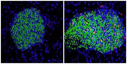 Pancreatic beta cells.