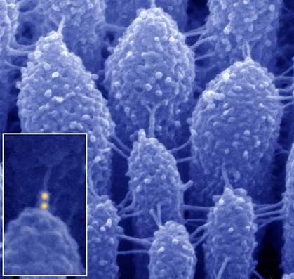 Micrograph of inner ear hair cells