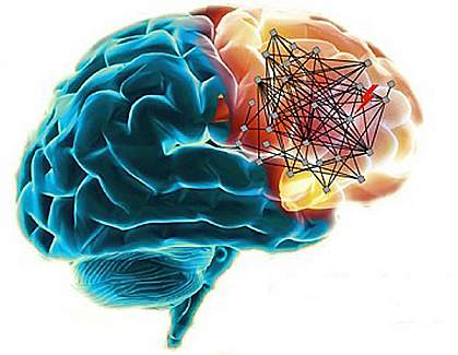 Schizophrenia networks in the human brain.