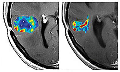 Left brain MRI shows larger area of color than the right.