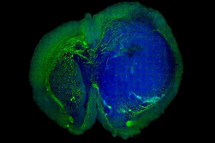 Tumor in a mouse brain.