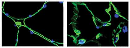Two images illustrating cellular damage