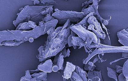 House dust, shown under high magnification.