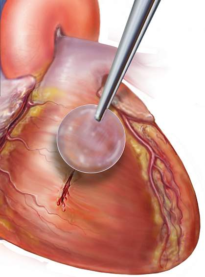 Illustration of patch being applied to heart tissue.