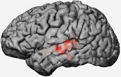 Electrical patterns in a brain.