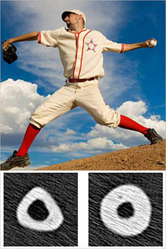 A baseball pitcher throwing, with cross-sections underneath of bigger bone under the throwing arm and smaller bone under the non-throwing arm.