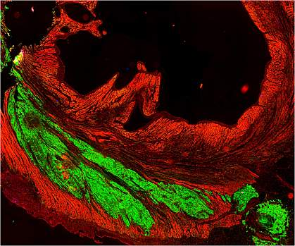 Microscopic image of heart muscle, with large fluorescent green areas among red.
