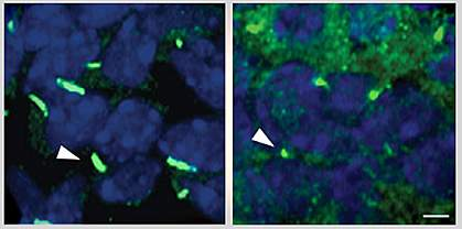 Cilia in liver cells.