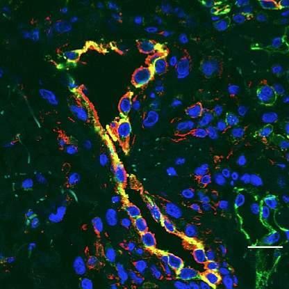 Inflamed blood vessels.