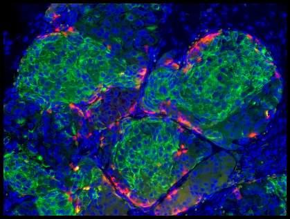 Human stem cell-derived beta cells.