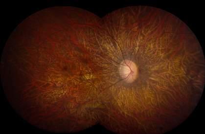 retinal photo