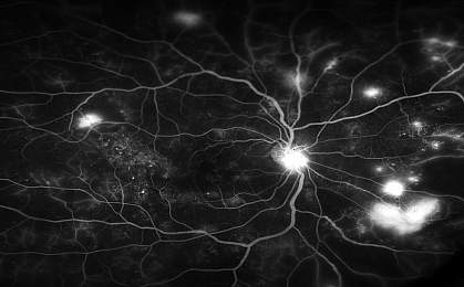 Retinal Blood Vessels.