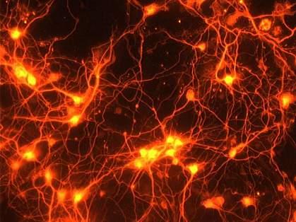 Neurons.